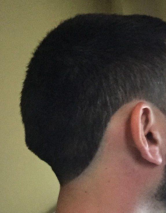 External occipital protuberance